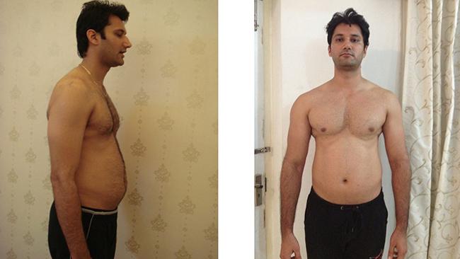 Tình trạng skinny fat